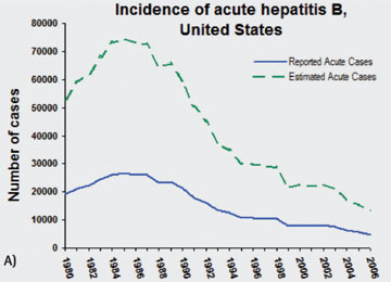 Inzidenz der akuten Hepatitis B in den USA